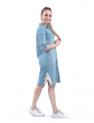 Yanları Dantel Düğmeli Kot Elbise